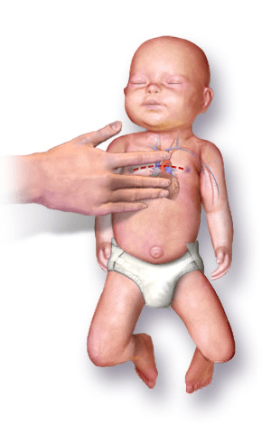 CPR On An Infant